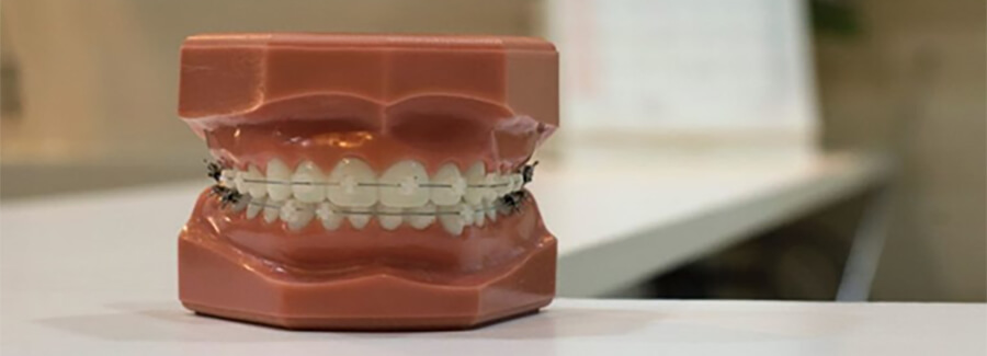 Dentist's model of teeth and gums.